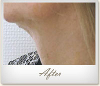 Dr  Mei Zhang, Health and Skin Care | PDO Thread Lift